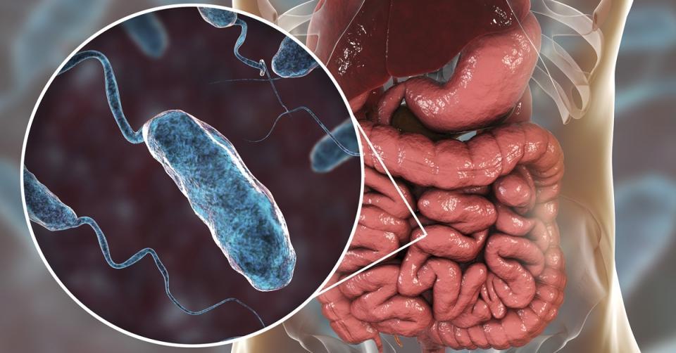 A healthy gut can even beat cholera